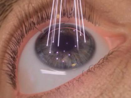 Cirurgia de Catarara a Laser