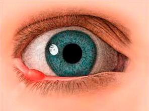 Pequenas Cirurgias Oculares