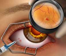 Tratamento Ocular com Antiangiogenico